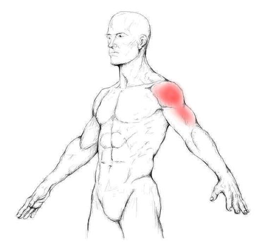 Músculo deltoides: Dolores y puntos gatillo
