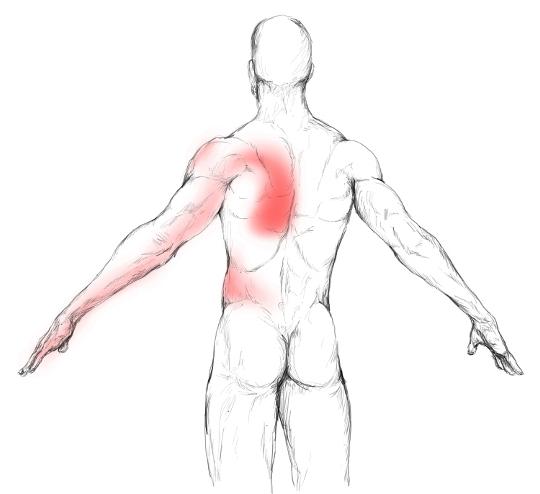 Músculo dorsal ancho: Dolores y puntos gatillo