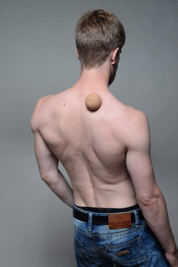 Músculo elevador de la escápula: Dolor y puntos gatillo