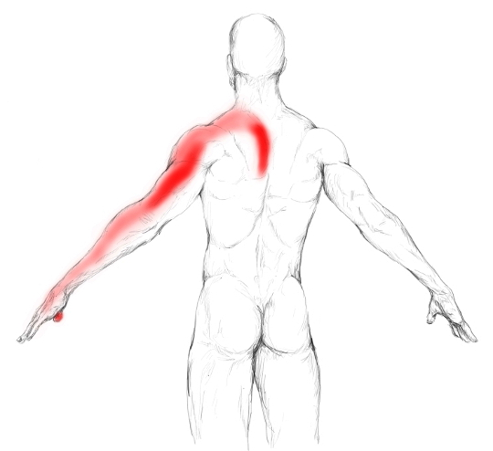 Músculos escalenos: Dolores, puntos gatillo, sobrecarga y más