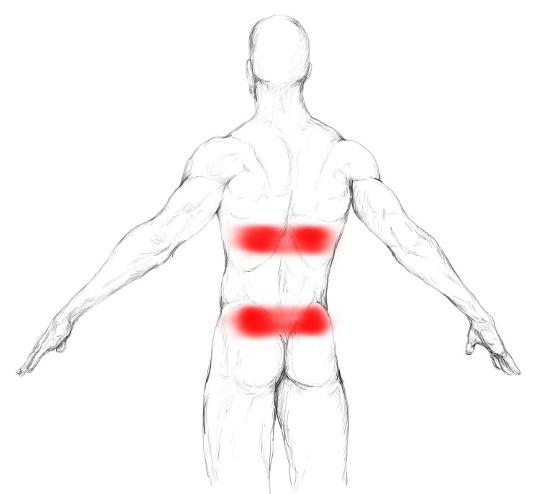 Músculo recto abdominal: Tratamiento de dolores y puntos gatillo