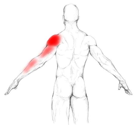 Músculo redondo mayor: Dolores y puntos gatillo