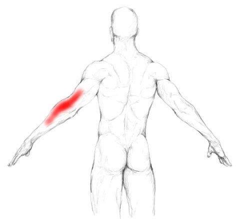 Músculo tríceps braquial: Autotratar dolores y puntos gatillo